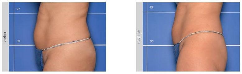 In vitro bodyshock 4 bauch Health Beauty Lifestyle AG