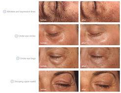 mesoestetic global eyecon Health Beauty Lifestyle AG