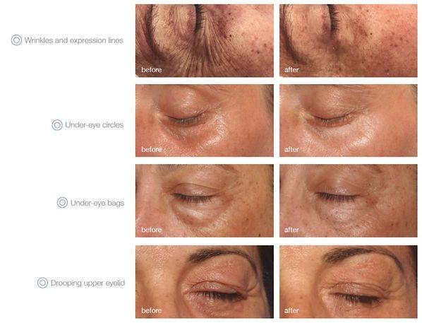 mesoestetic global eyecon handpeeling Health Beauty Lifestyle AG