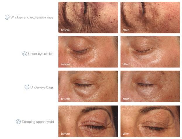 5x Global Eyecon - Peeling für Augenpartie