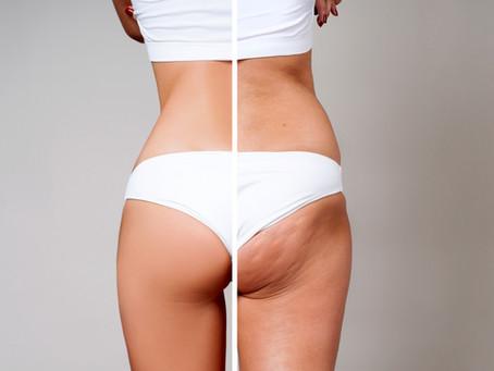 Cellulite: Ursachen, Behandlungen und Vorbeugung