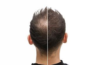 Haarwurzelbehandlung2.jpeg