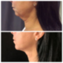Ultherapy at Great Neck Medical Spa