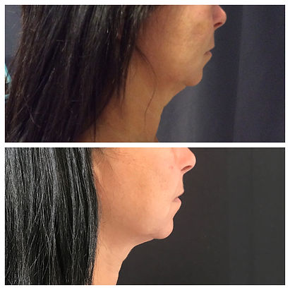 Ultherapy lower face and Neck