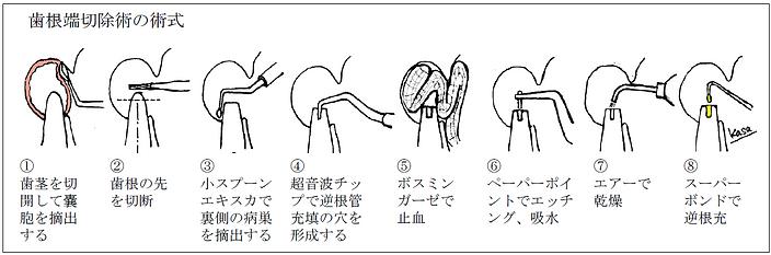 歯根端切除術の術式.png