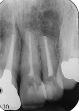 大きな歯根嚢胞術後.jpg