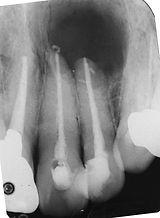 大きな歯根嚢胞.jpg