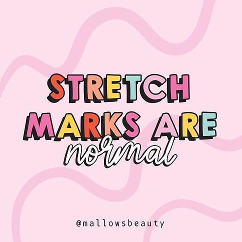 Stretch_Marks.jpg