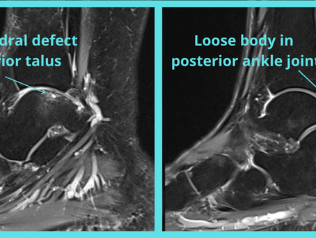Case discussion #18: osteochondral defect and loose body stuck in the posterior ankle