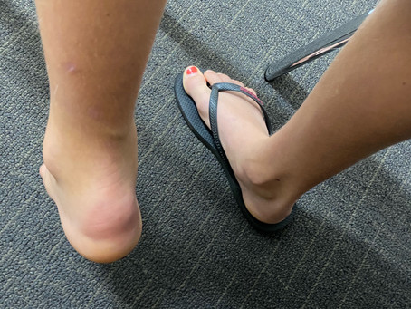 Case discussion: calcaneal osteomyelitis masquerading as sever's disease in a 10 year old girl