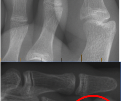 Case of the week #7: Osteomyelitis of subungual exostosis in a 15yo boy.