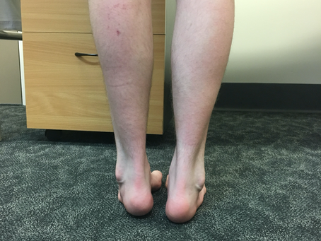 Case of the Week #8: Ankle instability secondary to Charcot-Marie-Tooth Disease