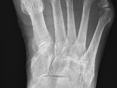 Case of the Week #9: first metatarsophalangeal joint and interphalangeal joint arthritis