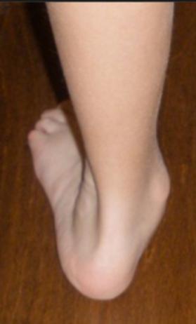 flat feet.png
