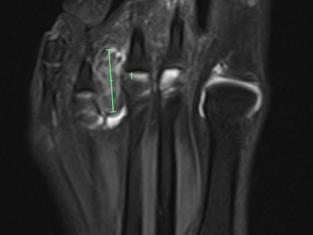 #1 Case of the week: large morton's neuroma