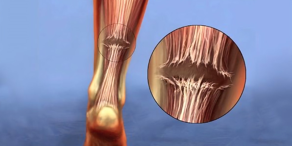 Management of acute ruptures of the achilles tendon.