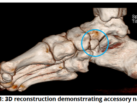 #4 case of the week: fracture through accessory navicular