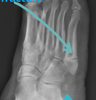 #2 Case of the week: non-union of fifth metatarsal stress fracture and symptomatic os peroneum