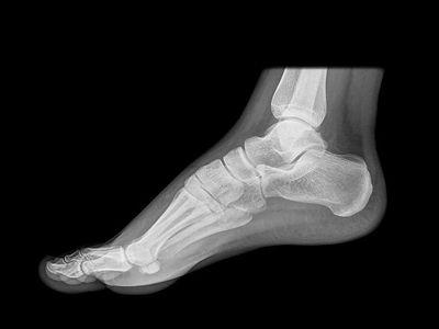 xray foot.jpg