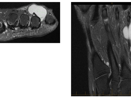Case Discussion #22: large ganglion in a 60 year old lady