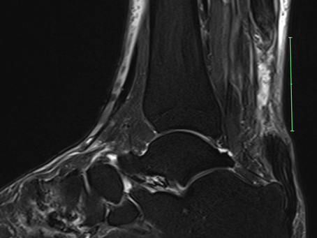 Case discussion #20: 76 year old gentleman with chronic rupture of the achilles tendon