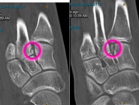 #3 Case of the Week: unstable LisFranc fracture successfully treated non-operatively