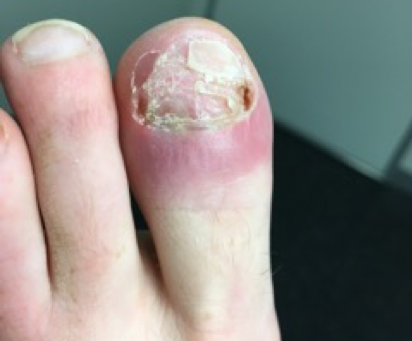 A 40 year old lady with rare fungal bone infection as cause of chronic toenail deformity