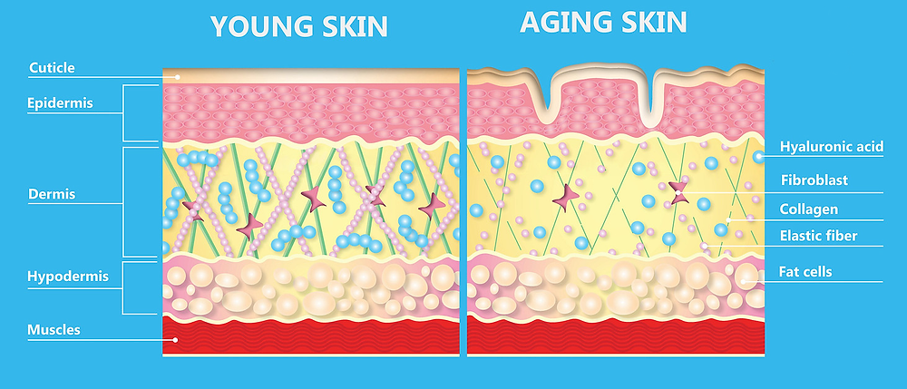The anatomy of aging skin