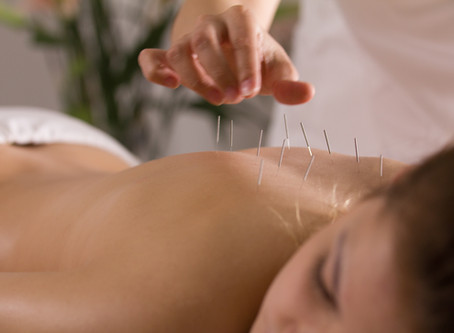 10 Common Pain Conditions Relieved With Acupuncture