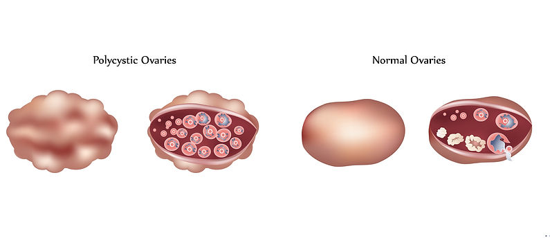 fertility Inositol pregnancy PCOS polycystic ovarian infertility