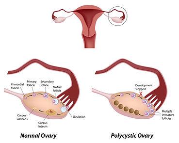 myo - Inositol, Inositol, metabolic syn, PCO, infertility, metabolisk syn, fertilitet, infertilitet, Baby ønske, bebis önskan