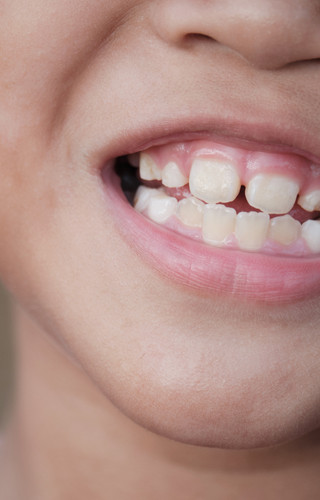 Yellow or Stained Teeth