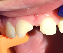 Chipped or Cracked Tooth