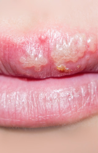 Cold Sore (Herpes)