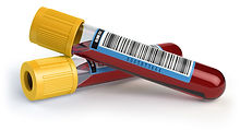 phleetbo-tubes.jpg