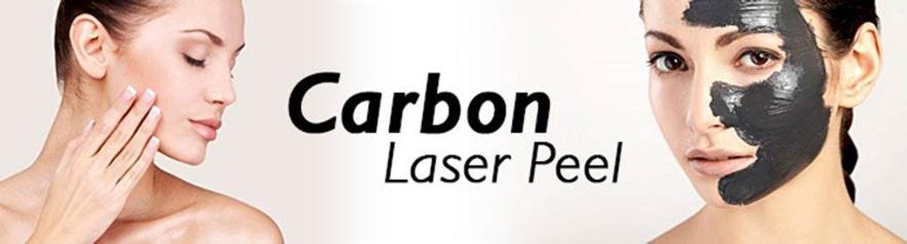 Carbon_Peeling.jpg