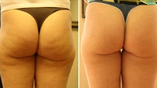 cellulite-reduction3.png