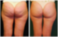 cellulite-reduction2.png
