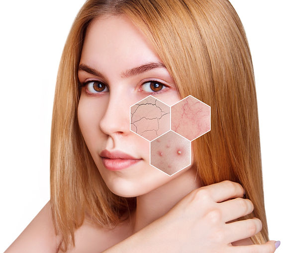 Problemhaut-Akne-Couperose-Neuro-Sensitiv-Cosmetic-for-man-and-woman