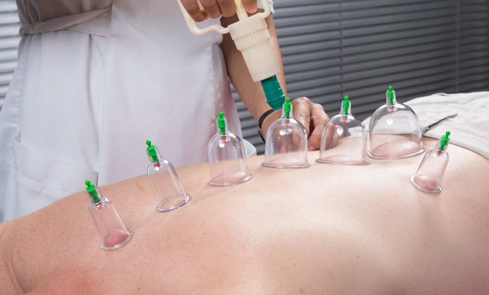 Cupping therapy, spa, woman doctor remov