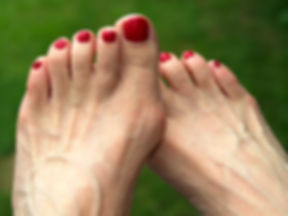 bunions-hammertoes-and-other-deformities