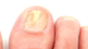 Fungal Nails  treated by Podiatrist Kristin Blanchet.jpg