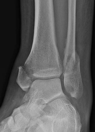 Image_Levine_Ankle_Fracture_1.jpg