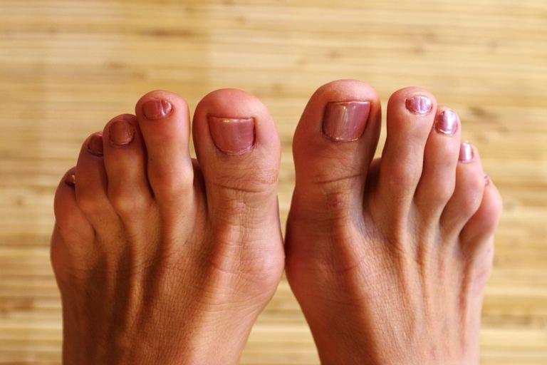 woman-s-feet-78023618-5b016d273128340037