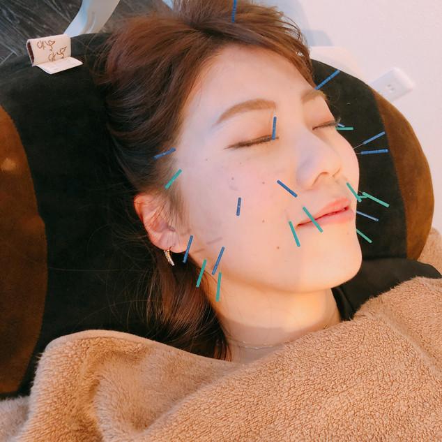 美容針施術