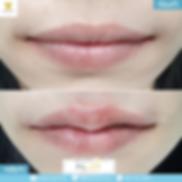 13082019ฟิลเลอร์ปาก.png