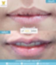 21102019ปากกระจับหลังทำทันที3.png