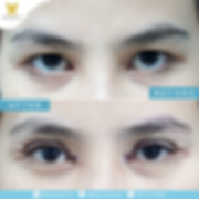 IG02052019รีวิวทำตาสองชั้น2.png