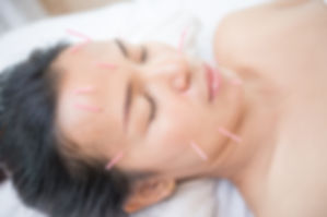 Woman receiving facial acupuncture treat