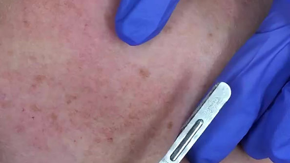 Dermaplane Facial In Action!